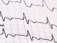 Kardiologie und Gefäßerkrankungen